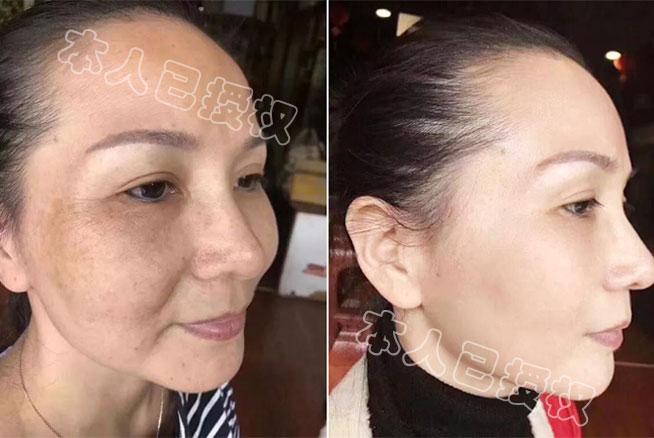 淡斑护肤品哪个品牌最好,怎么祛斑效果好,这个淡斑原液还你美丽肌肤!